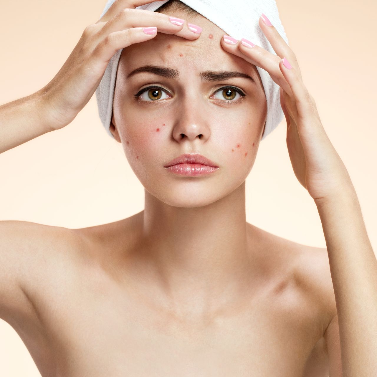 Acne Treatment and Scarring - Dermo Aesthetic Surgery