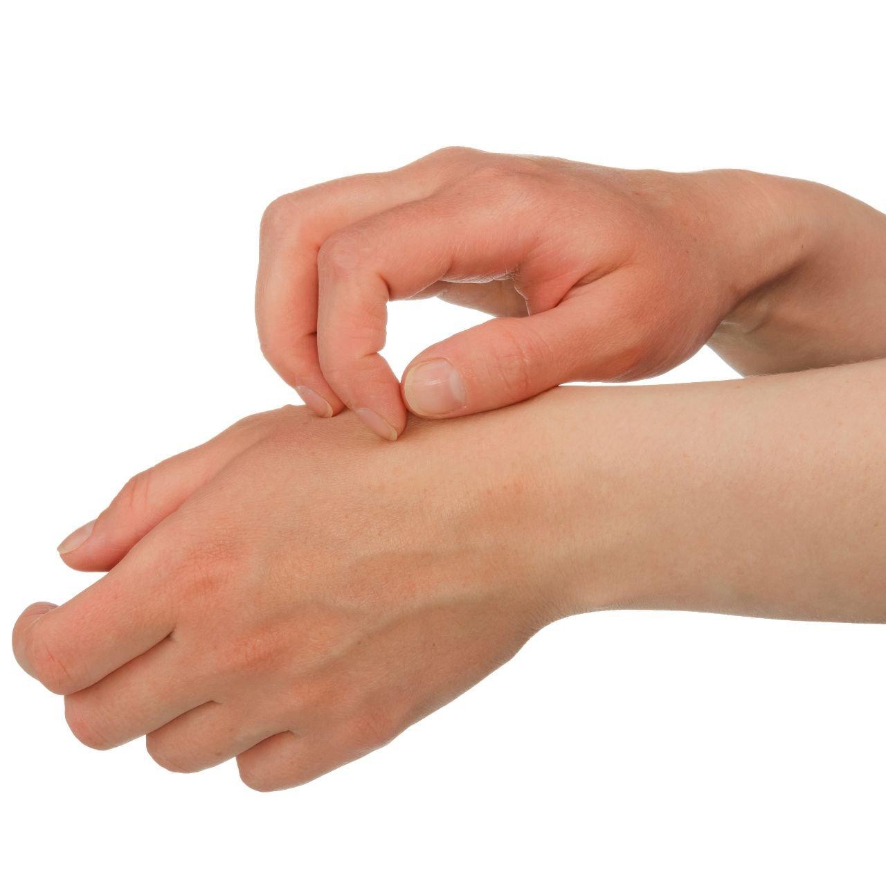 Eczema - Dermo Aesthetic Surgery