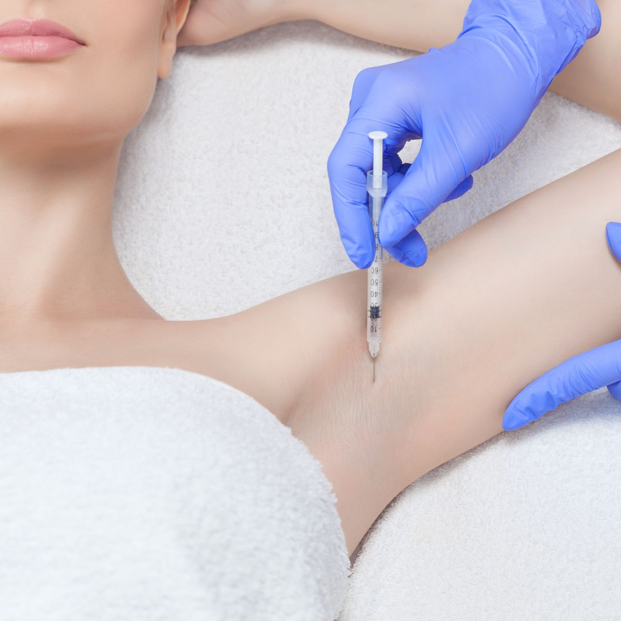 Hiperhidrosis - Dermo Aesthetic Surgery