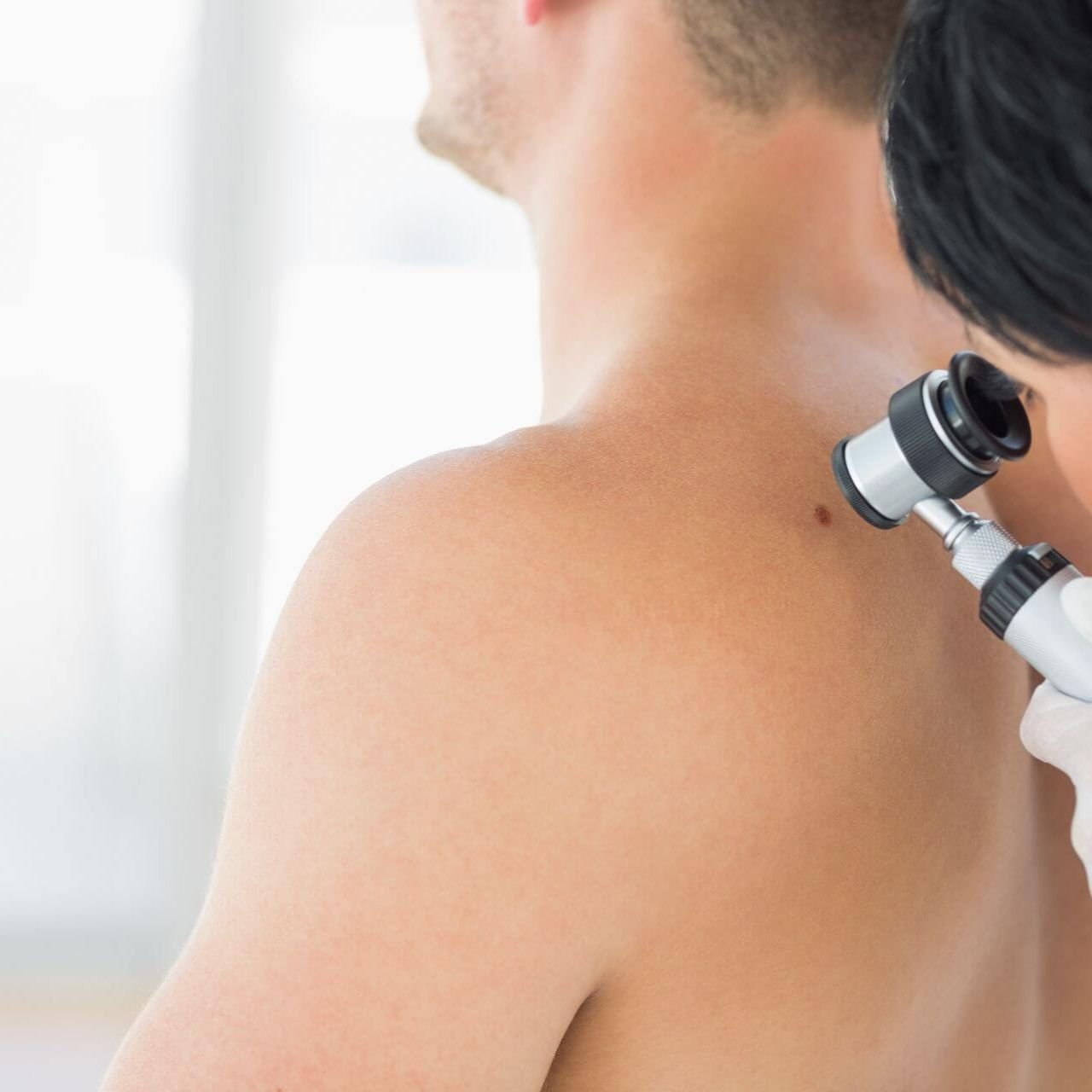 Skin Cancer Detection - Dermo Aesthetic Surgery