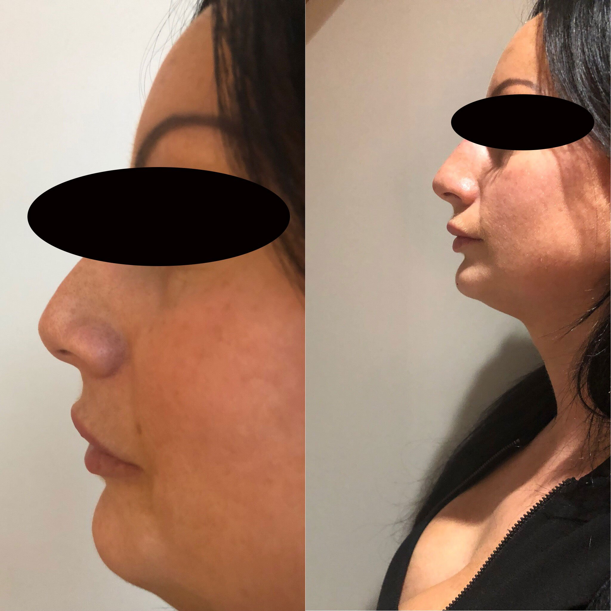 Before & After Photos - Dermo Aesthetic Surgery